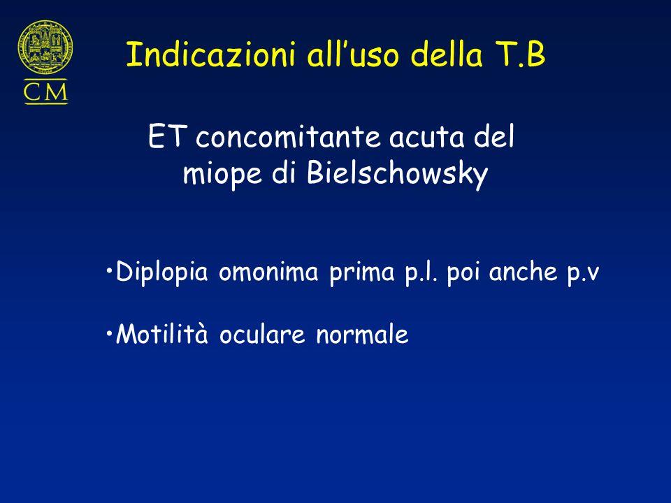 ET concomitante acuta del miope di Bielschowsky Diplopia omonima prima p.l. poi anche p.v Motilità oculare normale Indicazioni alluso della T.B