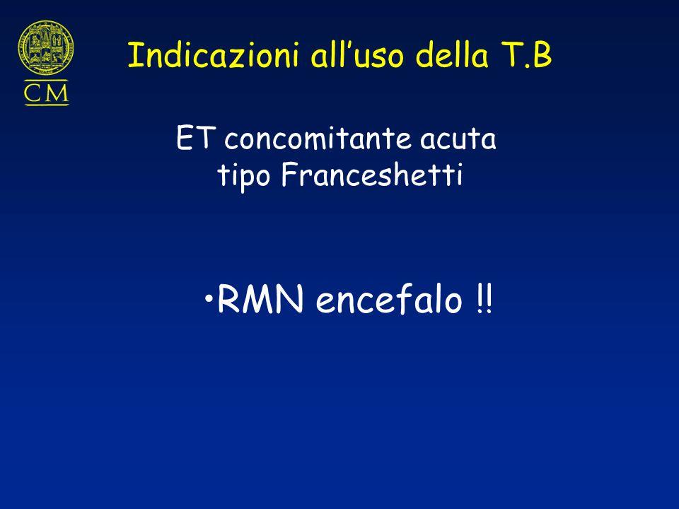 ET concomitante acuta tipo Franceshetti RMN encefalo !! Indicazioni alluso della T.B