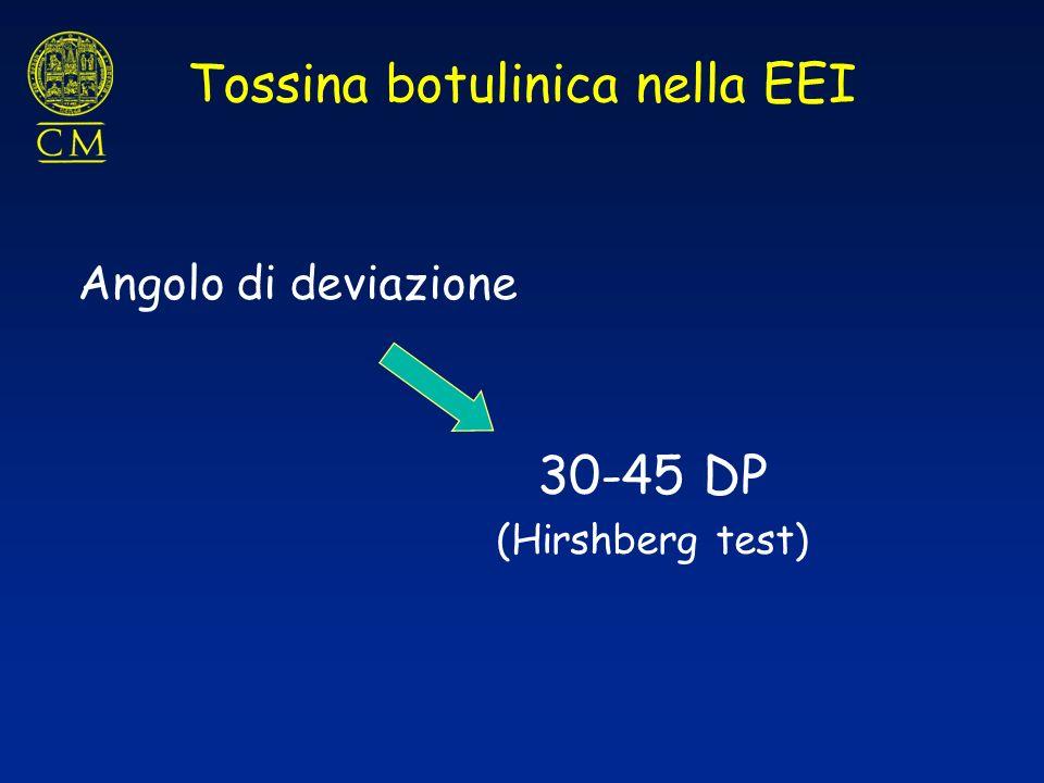 Angolo di deviazione 30-45 DP (Hirshberg test) Tossina botulinica nella EEI