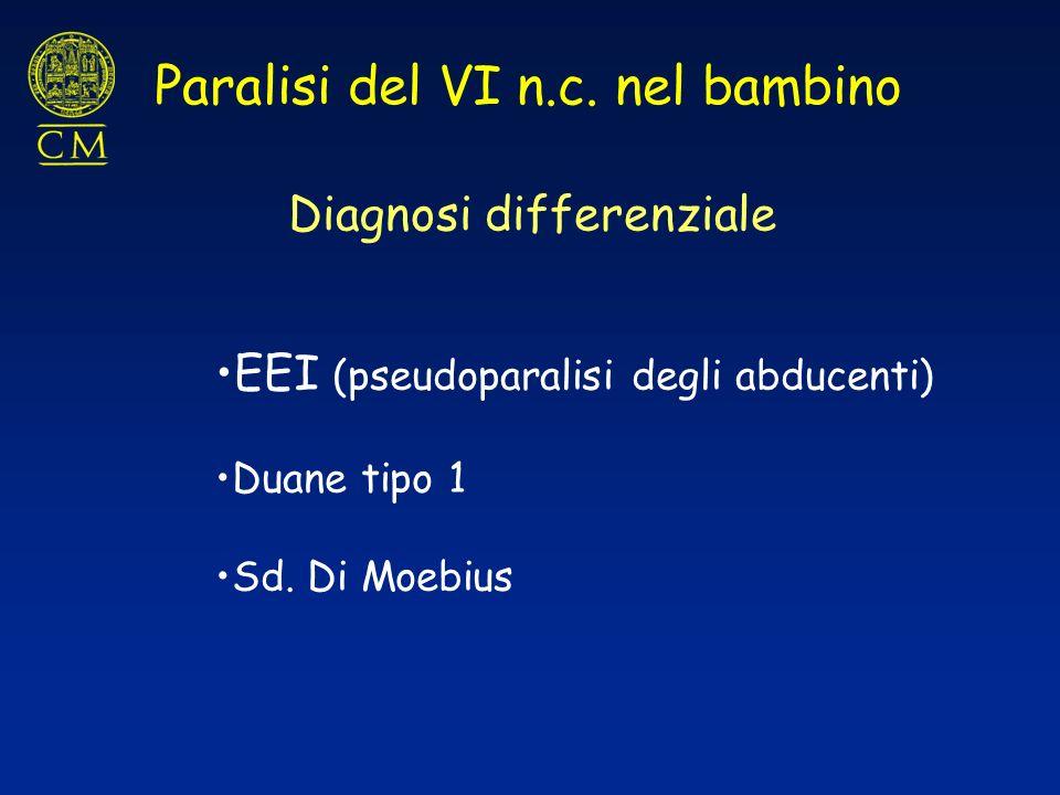 Paralisi del VI n.c. nel bambino Diagnosi differenziale EEI (pseudoparalisi degli abducenti) Duane tipo 1 Sd. Di Moebius
