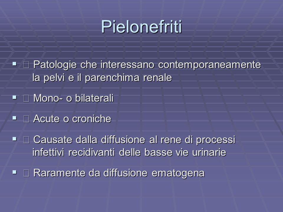 Pielonefriti Patologie che interessano contemporaneamente Patologie che interessano contemporaneamente la pelvi e il parenchima renale la pelvi e il p