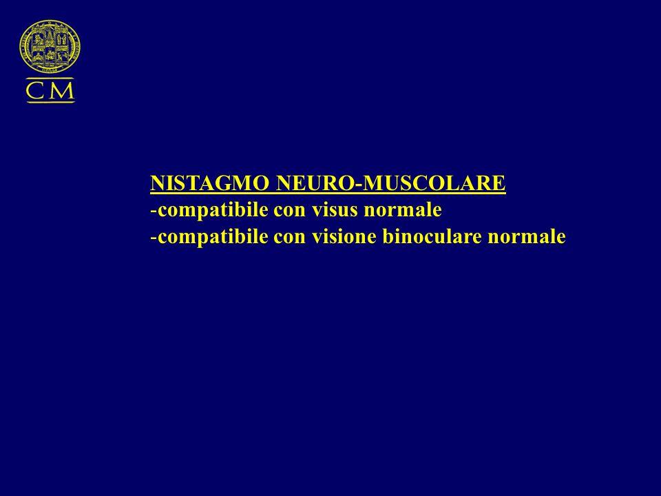 NISTAGMO NEURO-MUSCOLARE -compatibile con visus normale -compatibile con visione binoculare normale