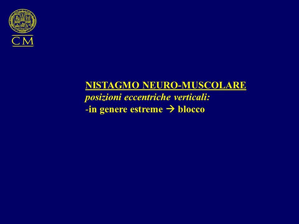 NISTAGMO NEURO-MUSCOLARE posizioni eccentriche verticali: -in genere estreme blocco