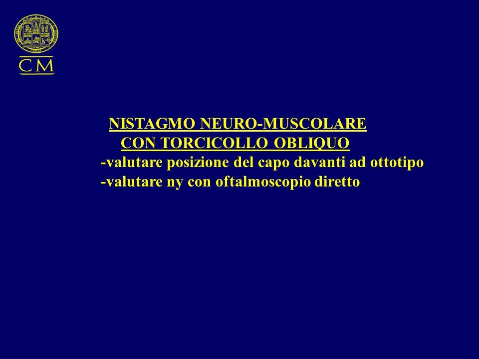 NISTAGMO NEURO-MUSCOLARE CON TORCICOLLO OBLIQUO -valutare posizione del capo davanti ad ottotipo -valutare ny con oftalmoscopio diretto