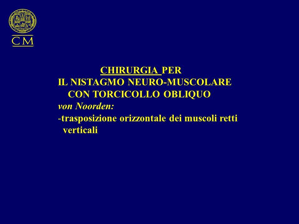 CHIRURGIA PER IL NISTAGMO NEURO-MUSCOLARE CON TORCICOLLO OBLIQUO von Noorden: -trasposizione orizzontale dei muscoli retti verticali