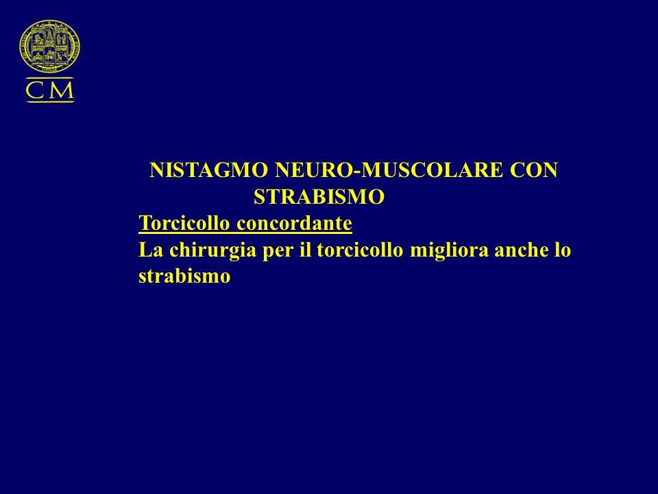 NISTAGMO NEURO-MUSCOLARE CON STRABISMO Torcicollo concordante La chirurgia per il torcicollo migliora anche lo strabismo
