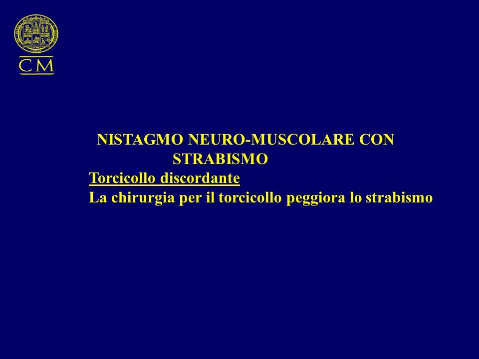 NISTAGMO NEURO-MUSCOLARE CON STRABISMO Torcicollo discordante La chirurgia per il torcicollo peggiora lo strabismo