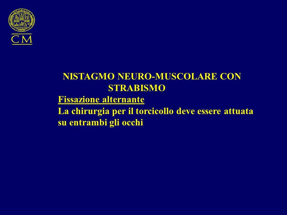 NISTAGMO NEURO-MUSCOLARE CON STRABISMO Fissazione alternante La chirurgia per il torcicollo deve essere attuata su entrambi gli occhi