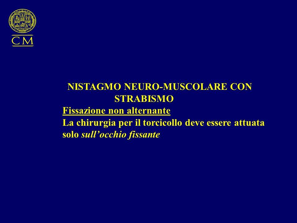 NISTAGMO NEURO-MUSCOLARE CON STRABISMO Fissazione non alternante La chirurgia per il torcicollo deve essere attuata solo sullocchio fissante