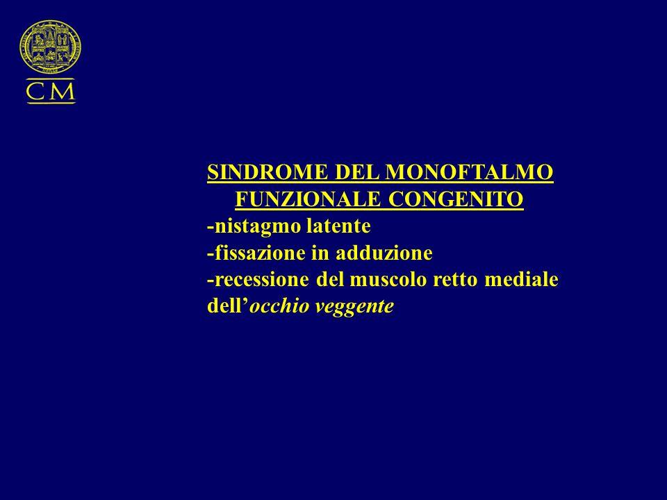 SINDROME DEL MONOFTALMO FUNZIONALE CONGENITO -nistagmo latente -fissazione in adduzione -recessione del muscolo retto mediale dellocchio veggente