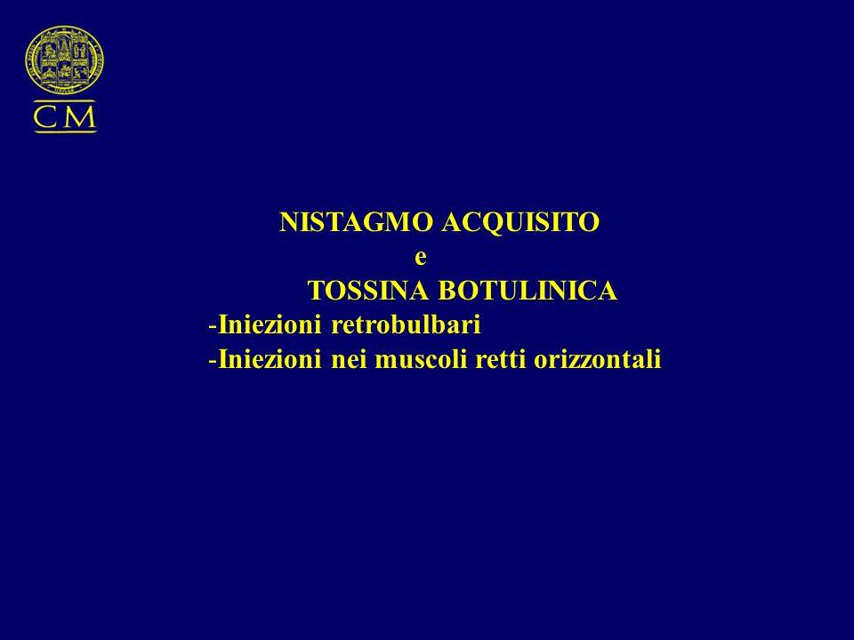 NISTAGMO ACQUISITO e TOSSINA BOTULINICA -Iniezioni retrobulbari -Iniezioni nei muscoli retti orizzontali