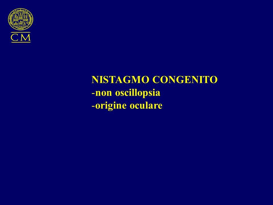 NISTAGMO CONGENITO -non oscillopsia -origine oculare
