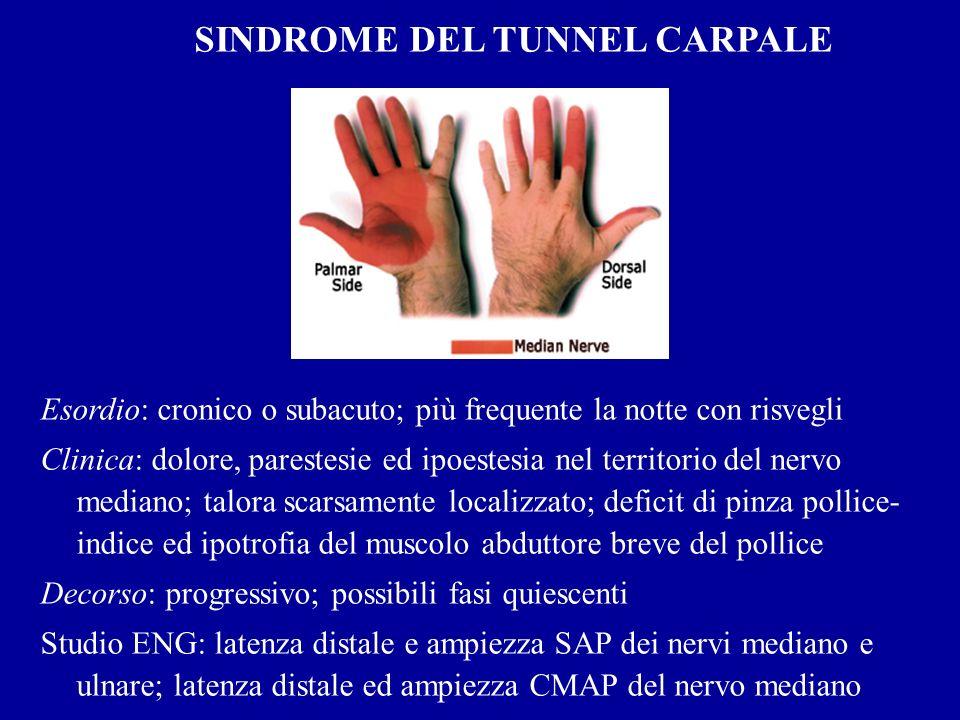 SINDROME DEL TUNNEL CARPALE Esordio: cronico o subacuto; più frequente la notte con risvegli Clinica: dolore, parestesie ed ipoestesia nel territorio