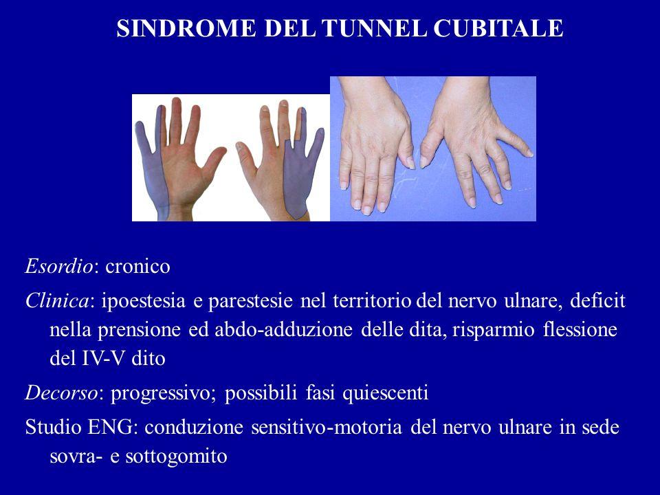 SINDROME DEL TUNNEL CUBITALE Esordio: cronico Clinica: ipoestesia e parestesie nel territorio del nervo ulnare, deficit nella prensione ed abdo-adduzi