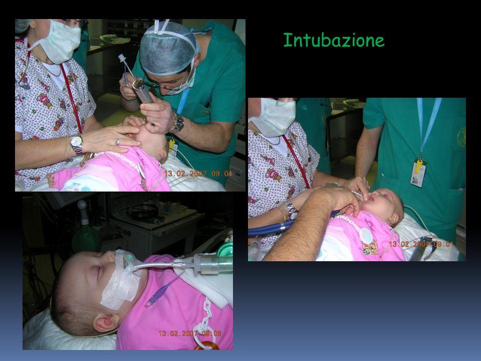 Intubazione