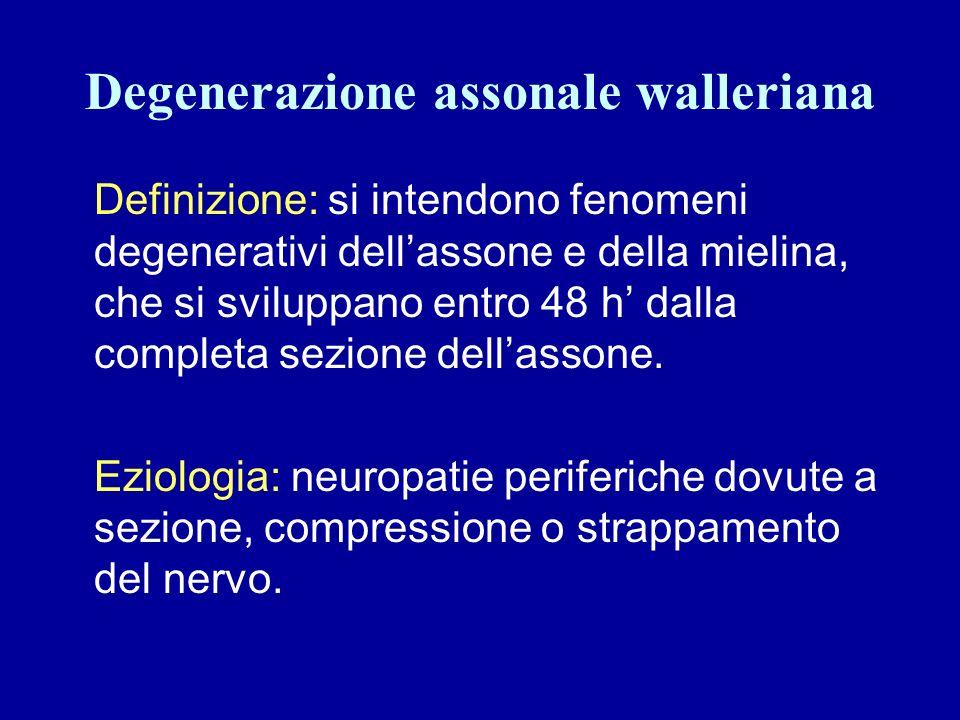 Degenerazione assonale walleriana Definizione: si intendono fenomeni degenerativi dellassone e della mielina, che si sviluppano entro 48 h dalla compl