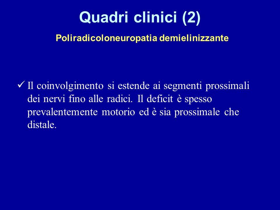 Quadri clinici (2) Poliradicoloneuropatia demielinizzante Il coinvolgimento si estende ai segmenti prossimali dei nervi fino alle radici. Il deficit è
