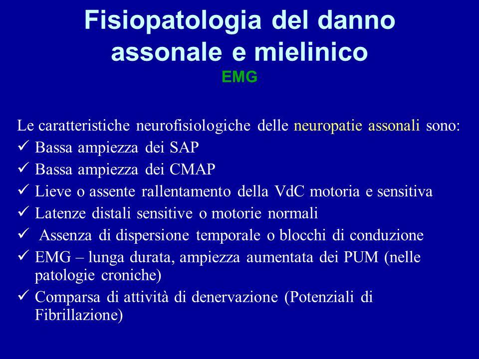 Fisiopatologia del danno assonale e mielinico EMG Le caratteristiche neurofisiologiche delle neuropatie assonali sono: Bassa ampiezza dei SAP Bassa am