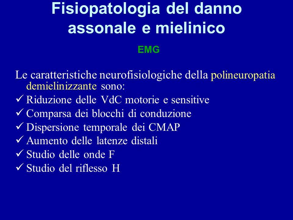 Fisiopatologia del danno assonale e mielinico EMG Le caratteristiche neurofisiologiche della p olineuropatia demielinizzante sono: Riduzione delle VdC