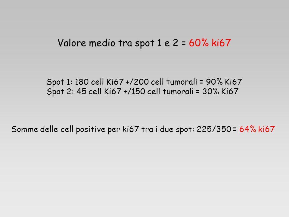 Valore medio tra spot 1 e 2 = 60% ki67 Spot 1: 180 cell Ki67 +/200 cell tumorali = 90% Ki67 Spot 2: 45 cell Ki67 +/150 cell tumorali = 30% Ki67 Somme