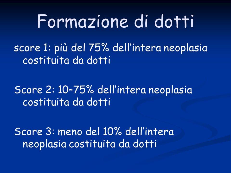 Formazione di dotti score 1: più del 75% dellintera neoplasia costituita da dotti Score 2: 10–75% dellintera neoplasia costituita da dotti Score 3: meno del 10% dellintera neoplasia costituita da dotti