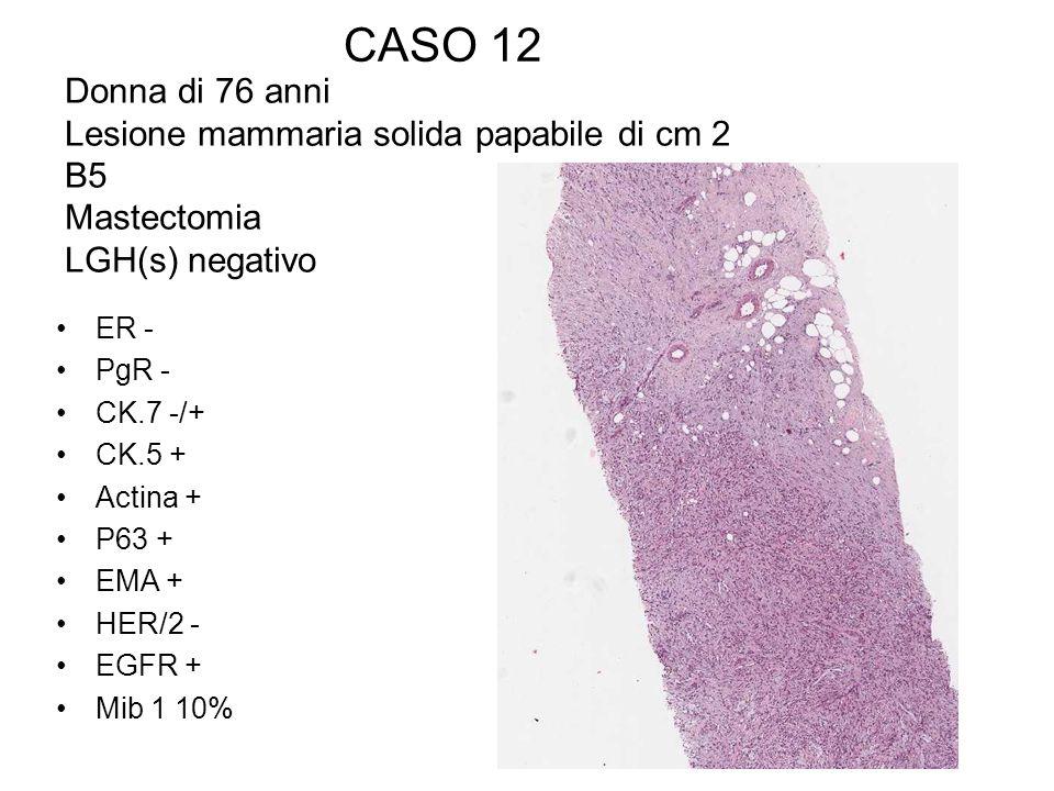 CASO 12 Donna di 76 anni Lesione mammaria solida papabile di cm 2 B5 Mastectomia LGH(s) negativo ER - PgR - CK.7 -/+ CK.5 + Actina + P63 + EMA + HER/2
