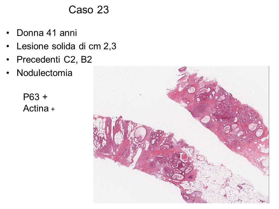 Caso 23 Donna 41 anni Lesione solida di cm 2,3 Precedenti C2, B2 Nodulectomia P63 + Actina +