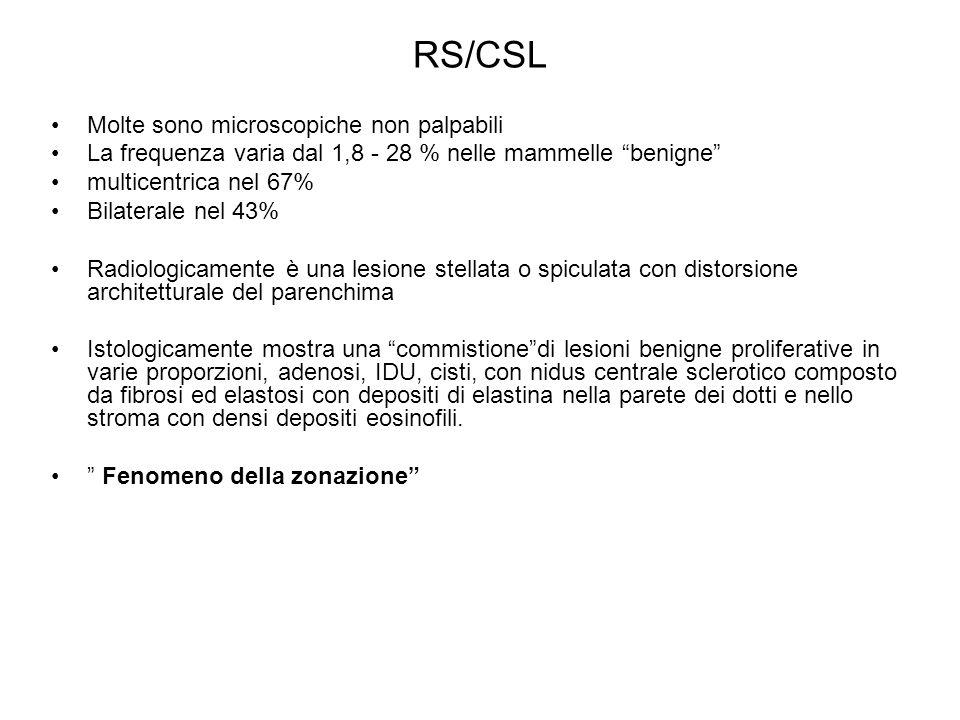 RS/CSL Molte sono microscopiche non palpabili La frequenza varia dal 1,8 - 28 % nelle mammelle benigne multicentrica nel 67% Bilaterale nel 43% Radiol