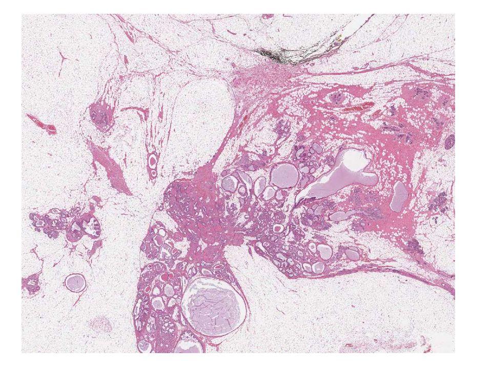 CASO 12 Donna di 76 anni Lesione mammaria solida papabile di cm 2 B5 Mastectomia LGH(s) negativo ER - PgR - CK.7 -/+ CK.5 + Actina + P63 + EMA + HER/2 - EGFR + Mib 1 10%