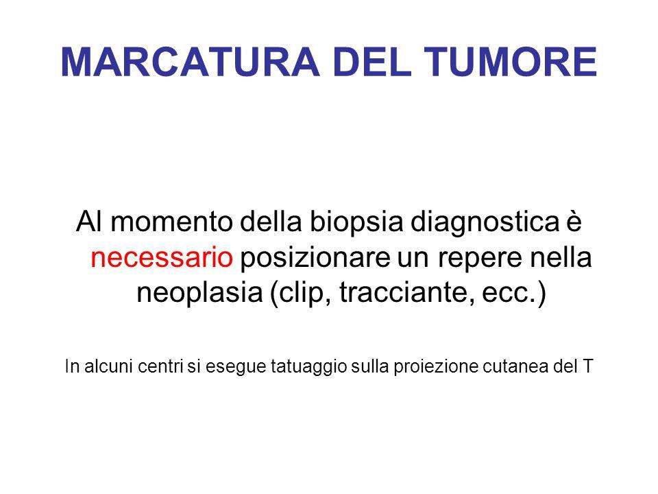 MARCATURA DEL TUMORE Al momento della biopsia diagnostica è necessario posizionare un repere nella neoplasia (clip, tracciante, ecc.) In alcuni centri