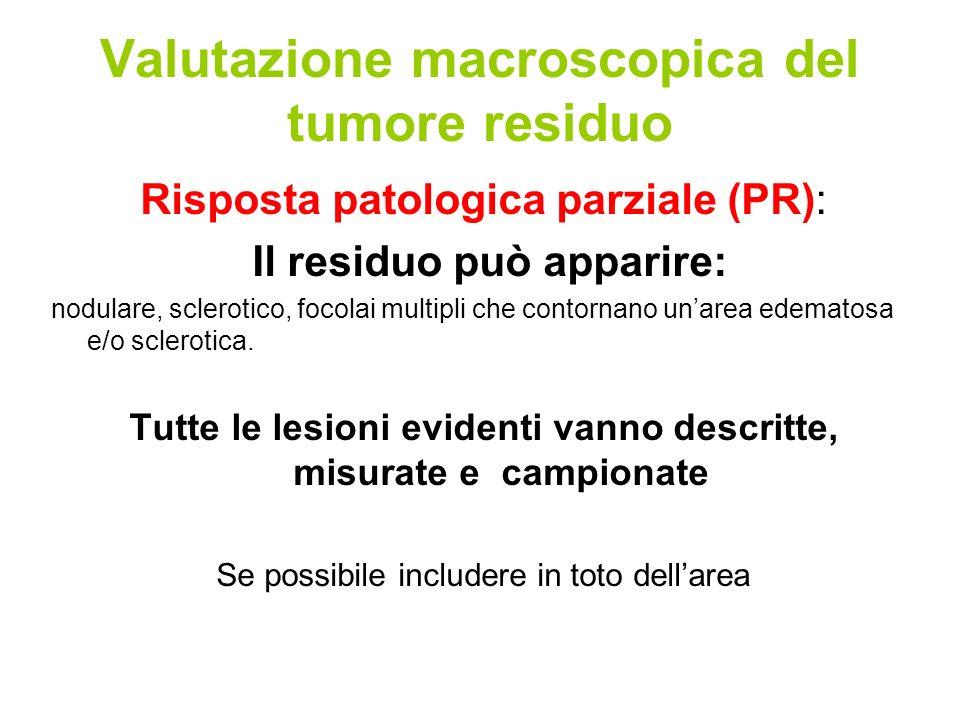 Valutazione macroscopica del tumore residuo Risposta patologica parziale (PR): Il residuo può apparire: nodulare, sclerotico, focolai multipli che contornano unarea edematosa e/o sclerotica.