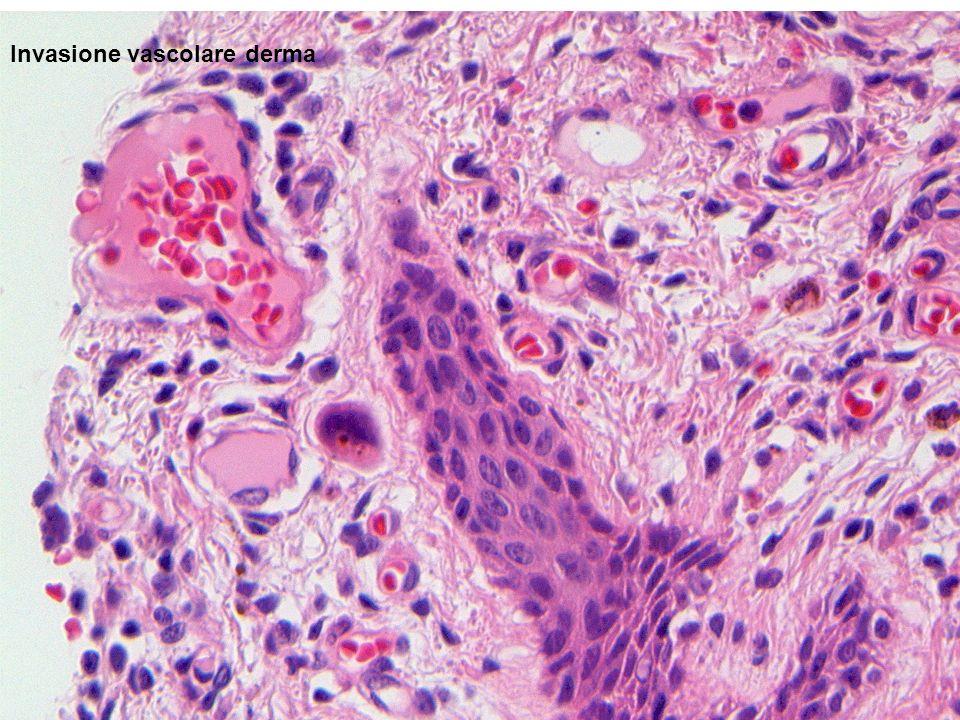 Invasione vascolare derma