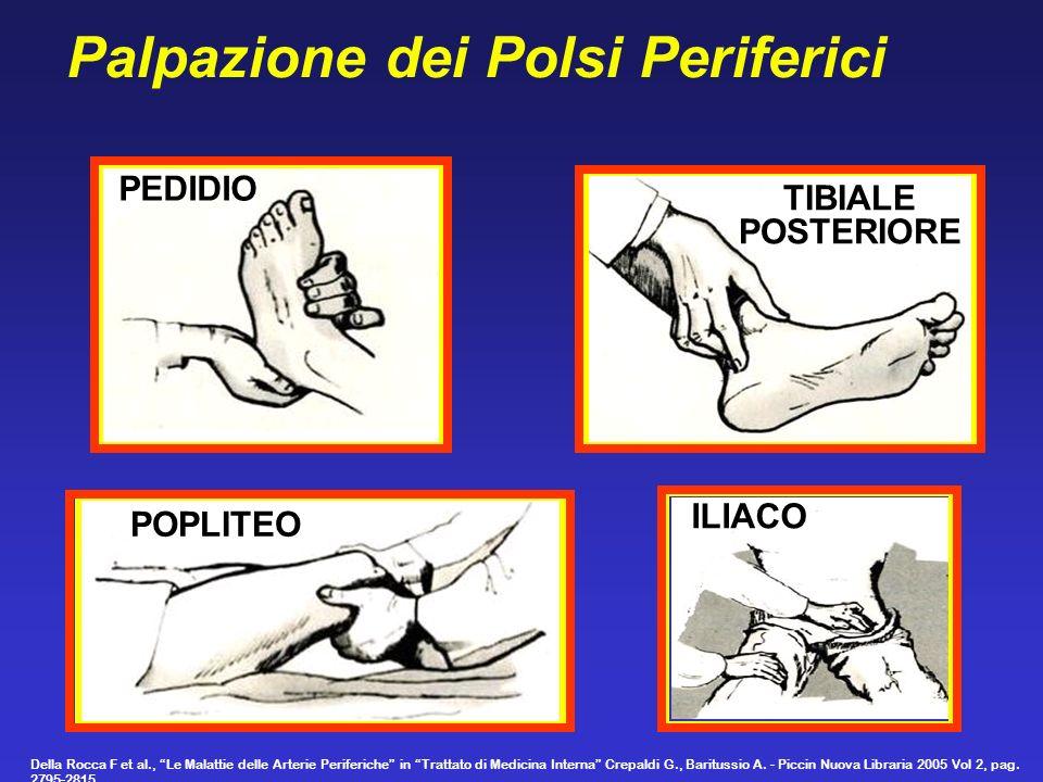 ILIACO POPLITEO PEDIDIO TIBIALE POSTERIORE Palpazione dei Polsi Periferici Della Rocca F et al., Le Malattie delle Arterie Periferiche in Trattato di