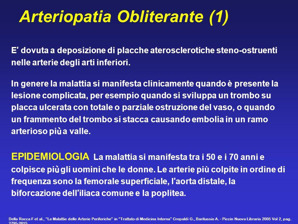 Arteriopatia Obliterante (1) E dovuta a deposizione di placche aterosclerotiche steno-ostruenti nelle arterie degli arti inferiori. In genere la malat