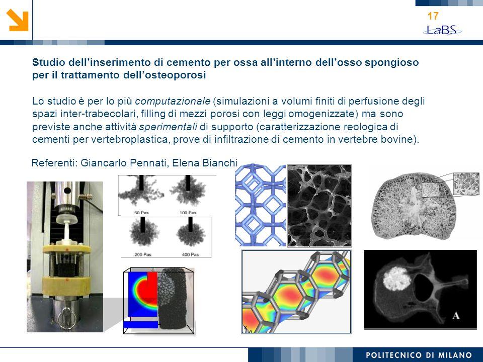 17 Studio dellinserimento di cemento per ossa allinterno dellosso spongioso per il trattamento dellosteoporosi Lo studio è per lo più computazionale (