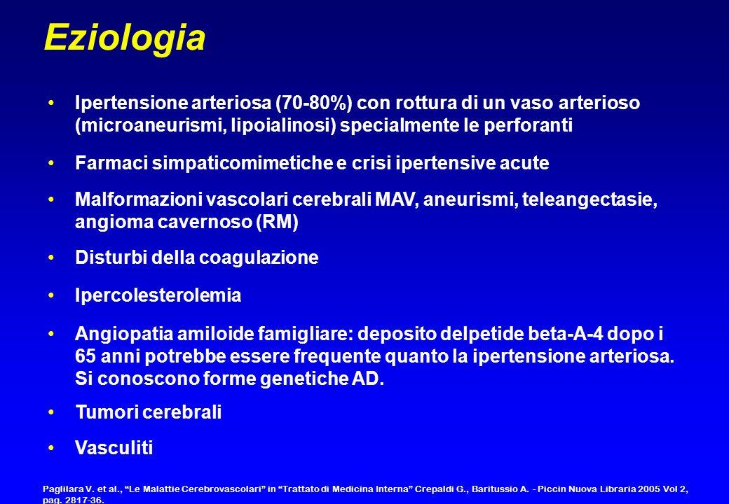 Ipertensione arteriosa (70-80%) con rottura di un vaso arterioso (microaneurismi, lipoialinosi) specialmente le perforanti Farmaci simpaticomimetiche