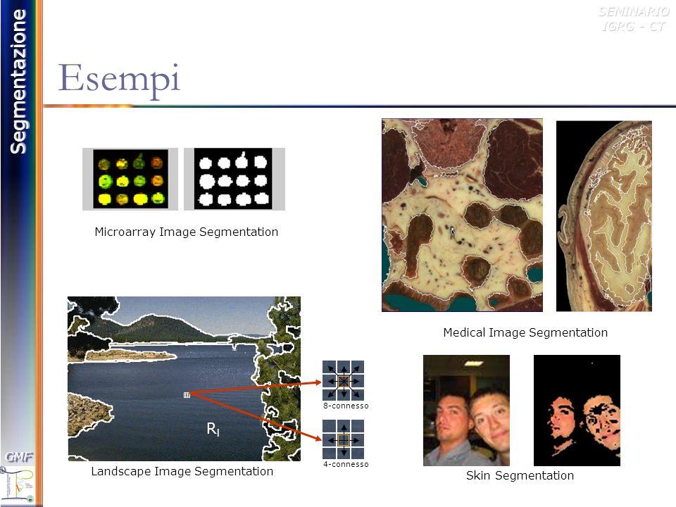 Segmentazione GMFGMFSEMINARIO IGRG - CT Segmentation Resolution Si possono definire tre categorie di risoluzione: Undersegmentation corrisponde alla risoluzione più bassa.