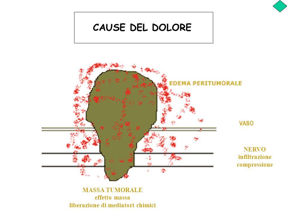 CAUSE DEL DOLORE VASO NERVO infiltrazione compressione MASSA TUMORALE effetto massa liberazione di mediatori chimici
