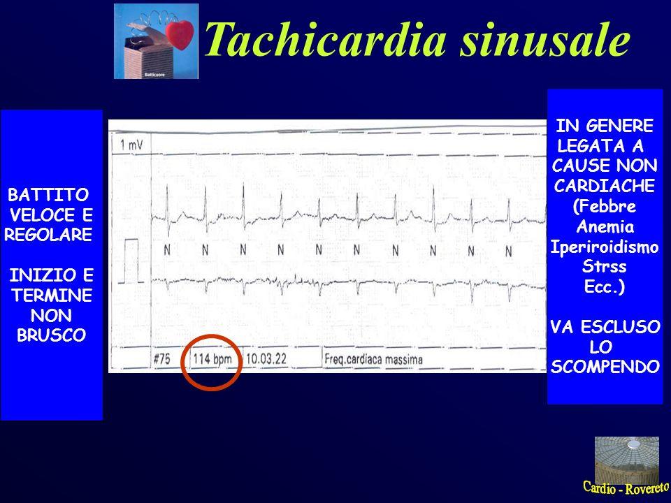 Tachicardia sinusale BATTITO VELOCE E REGOLARE INIZIO E TERMINE NON BRUSCO IN GENERE LEGATA A CAUSE NON CARDIACHE (Febbre Anemia Iperiroidismo Strss E