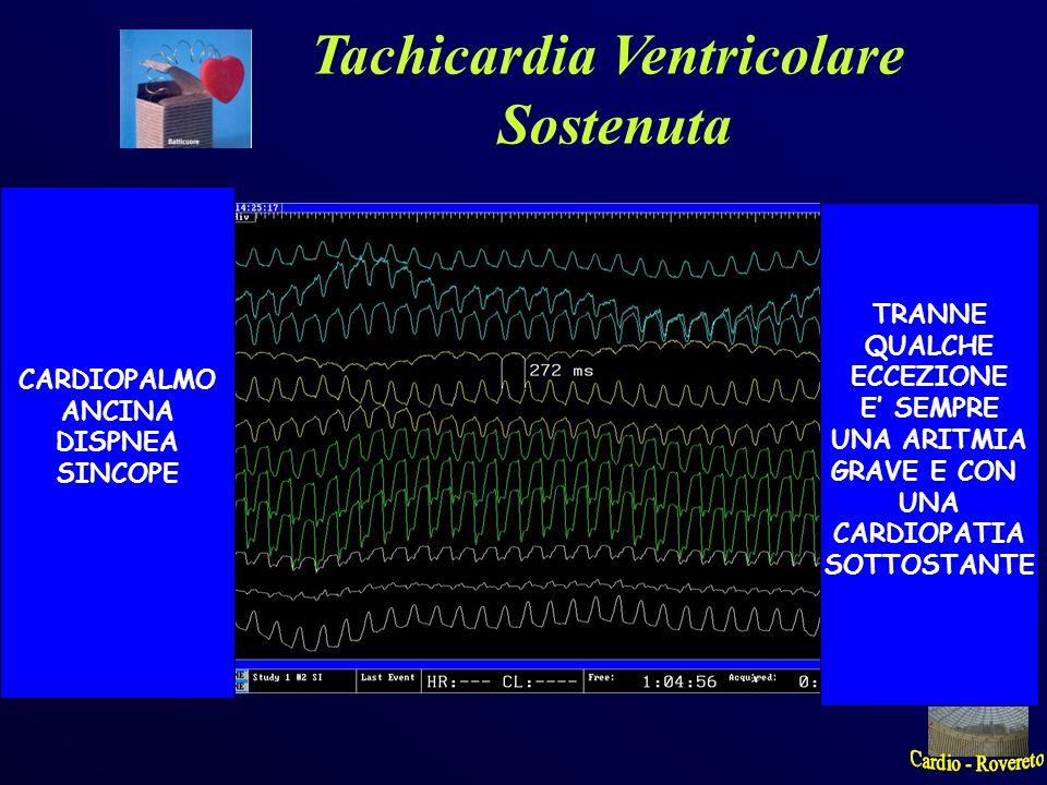 Tachicardia Ventricolare Sostenuta CARDIOPALMO ANCINA DISPNEA SINCOPE TRANNE QUALCHE ECCEZIONE E SEMPRE UNA ARITMIA GRAVE E CON UNA CARDIOPATIA SOTTOS