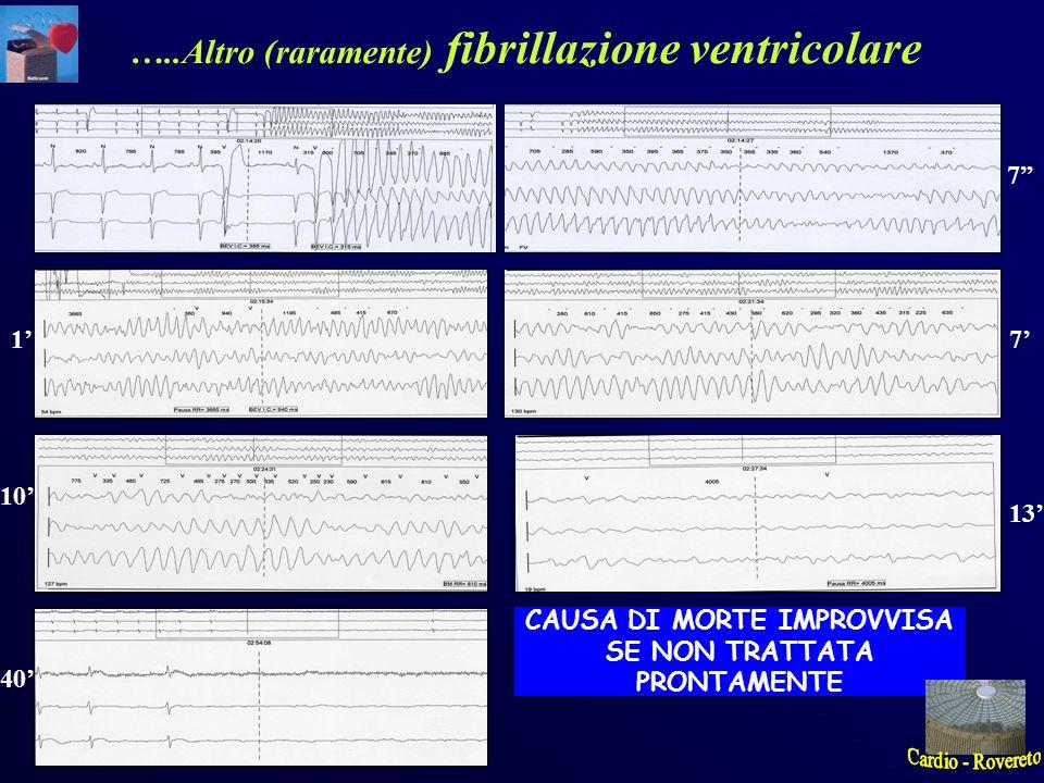 7 17 10 13 40 CAUSA DI MORTE IMPROVVISA SE NON TRATTATA PRONTAMENTE …..Altro (raramente) fibrillazione ventricolare