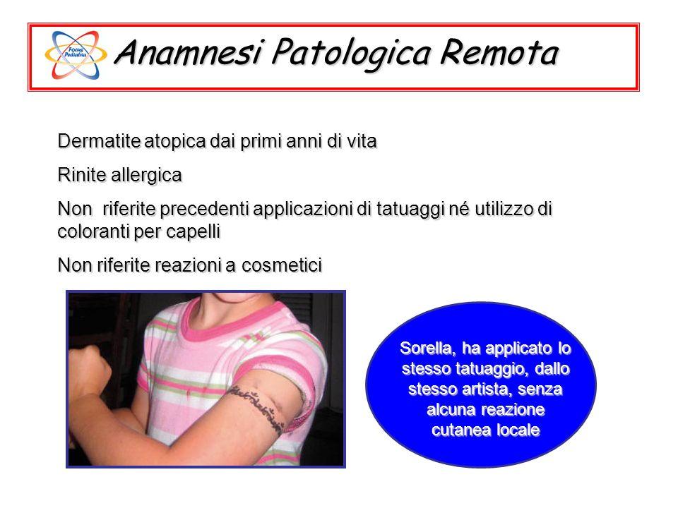 Anamnesi Patologica Remota Dermatite atopica dai primi anni di vita Rinite allergica Non riferite precedenti applicazioni di tatuaggi né utilizzo di c
