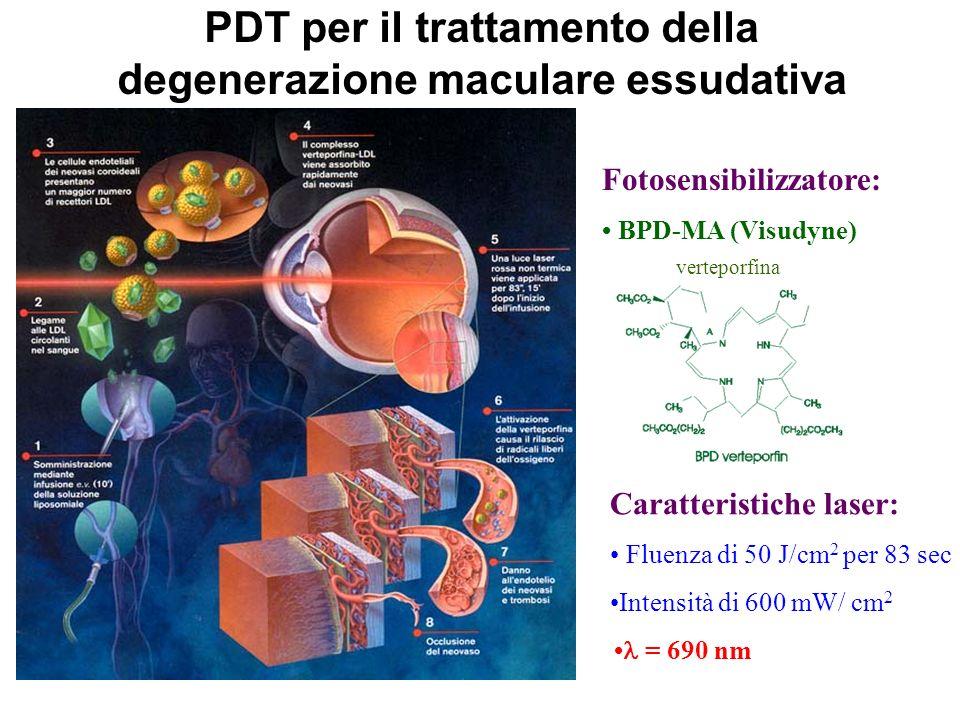 Fotosensibilizzatore: BPD-MA (Visudyne) PDT per il trattamento della degenerazione maculare essudativa Caratteristiche laser: Fluenza di 50 J/cm 2 per