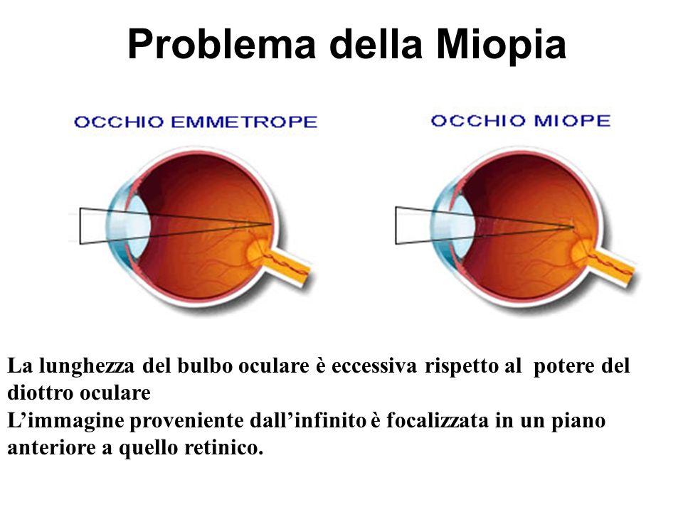 Problema della Miopia La lunghezza del bulbo oculare è eccessiva rispetto al potere del diottro oculare Limmagine proveniente dallinfinito è focalizza
