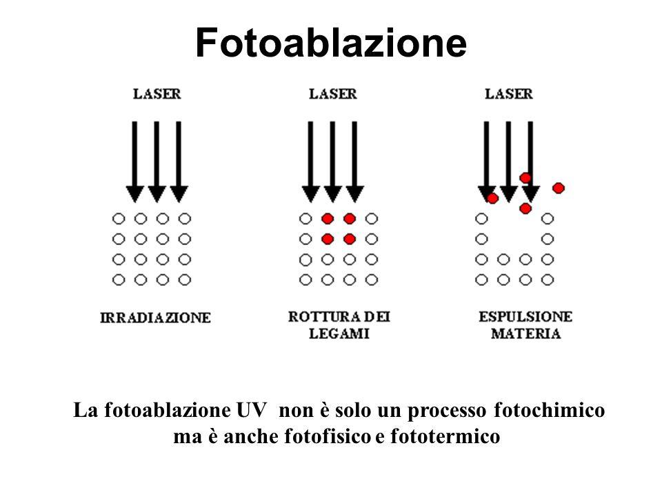 Fotoablazione La fotoablazione UV non è solo un processo fotochimico ma è anche fotofisico e fototermico