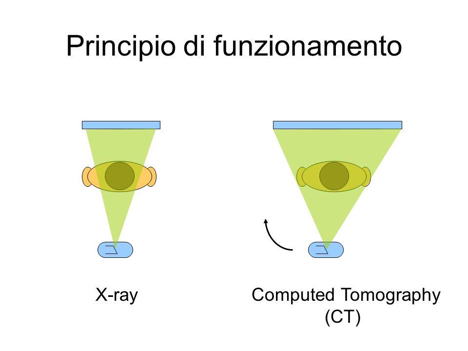 Principio di funzionamento Computed Tomography (CT) X-ray