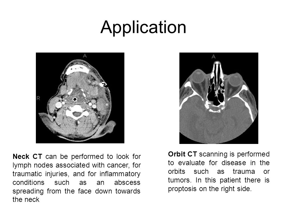 Orbit CT scanning is performed to evaluate for disease in the orbits such as trauma or tumors. In this patient there is proptosis on the right side. N
