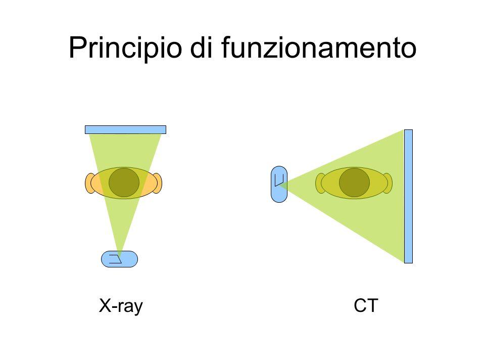 - raggi X poly Eindurimento del fascioartefatti - fan beam aumento della complessità di ricostruzione Caso reale: Ricostruzione immagine