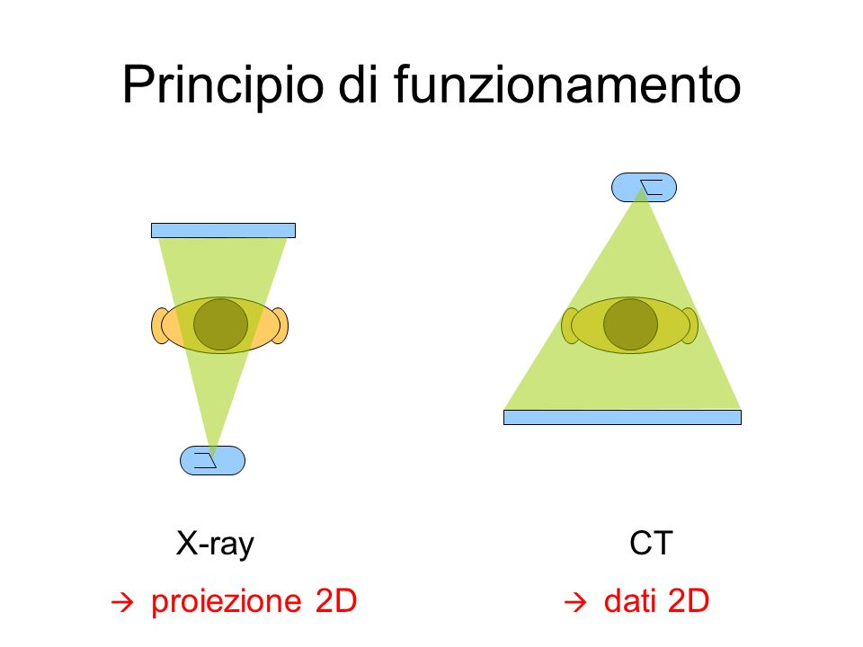 Differenza con X-Ray convenzionali Chest X-ray ImageCross-sectional Image of Abdomen
