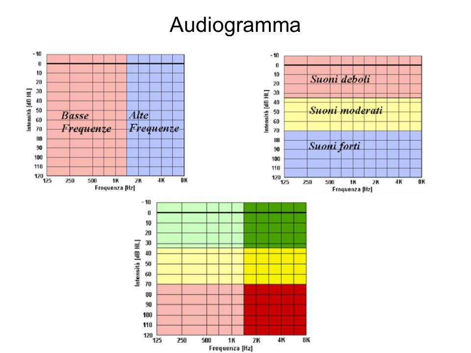 Audiogramma